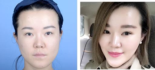 面部修复案例