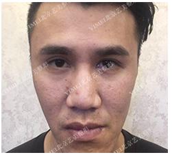 面部修复案例:面部填充不对称