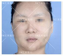 面部修复案例:脂肪填充过度