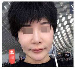 面部修复案例:越填充脸越大
