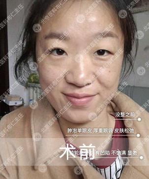 面部修复案例:厚重眼袋,皮肤松弛