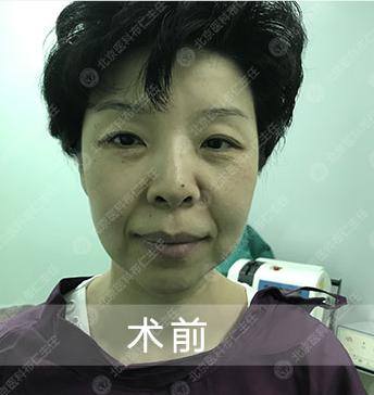 面部修复案例:面部除皱,面部提升