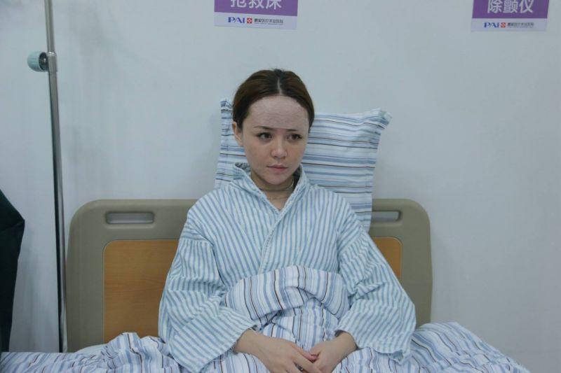 上海脂肪填充最好的医生是谁?王荣锡孙美庆张路曹卫刚刘李娜(预约)谁厉害?
